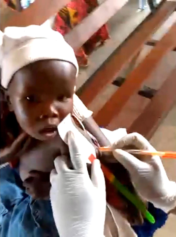 省下大餐錢捐助飢餓三十!王子、鼓鼓線上關懷南蘇丹「看到陰性結果非常喜悅!」